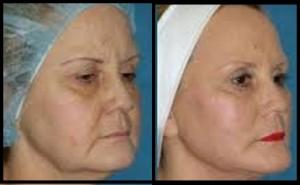 کاربرد لیفتینگ صورت با نخ