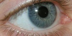 مبتلایان به دیابت مراقب چشم هایتان باشید