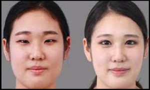 اطلاعات مفید پیرامون جراحی پلک یا بلفاروپلاستی