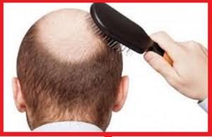 عوامل کاهش دهنده ریزش موها