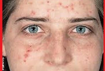 منشاء جوش های صورت شما در کجای بدنتان است؟