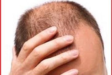 با مواد معدنی و ویتامین های موثر در جلوگیری از ریزش  موها آشنا شوید