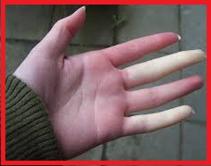 علت سردی انگشتان