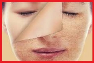 مراقبت از پوست در مقابل آفتاب