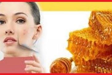 با ماسک های عسل  جوش های صورتتان را درمان کنید
