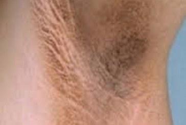 علت تیره شدن پوست برخی از نقاط بدن چیست؟