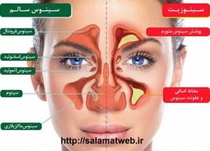علت بروز سینوزیت و داروهای مورد استفاده در سینوزیت
