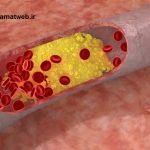 با خوراکی های زیر چربی خونتان را کاهش دهید