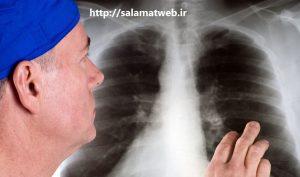 روش های تشخیص سرطان ریه