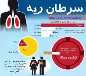 روش های درمان سرطان ریه