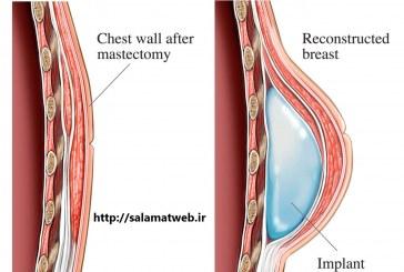 دانستنی های مفید در مورد پروتز سینه