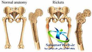 راه تشخیص نرمی استخوان