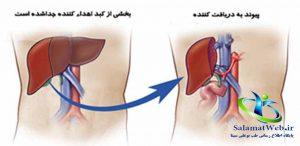 راه تشخیص سرطان کبد
