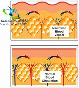 راه های درمان سلولیت