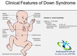 نشانه های کودک مبتلا به سندروم داون