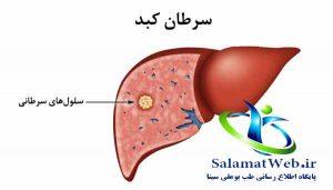 عوامل موثر در ابتلا به سرطان کبد