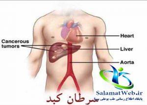 راه درمان سرطان کبد