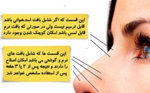 خرید کرم کوچک کننده بینی استخوانی