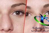 بهترین دستگاه کوچک کننده بینی+کرم کوچک کننده بینی گوشتی