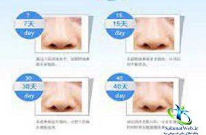 چسب کوچک کننده بینی