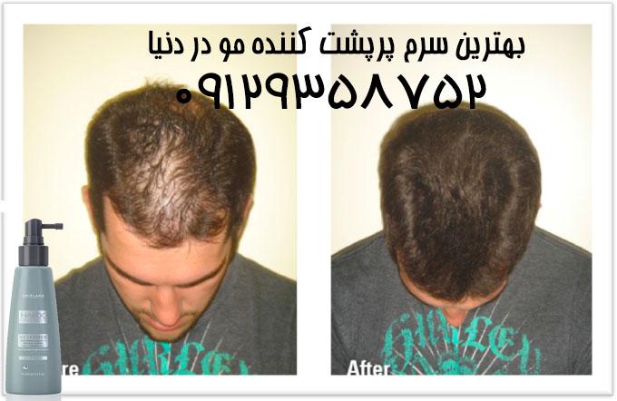 بهترین محلول ضد ریزش مو خارجی