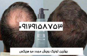 جدیدترین درمان ریزش موی ارثی