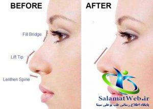 خرید گیره کوچک کننده بینی نوز آپ