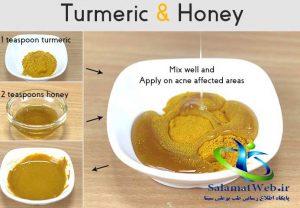 درمان آکنه با عسل و زردچوبه