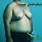 ژنیکوماستی(بزرگی سینه در آقایان)+روشهای درمان ژنیکوماستی