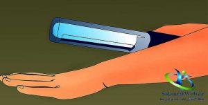 درمان اگزما با فتوتراپی