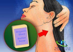 درمان خانگی اگزما
