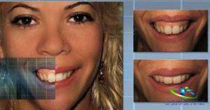 روش های درمان لبخند لثه ای
