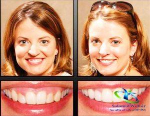 درمان لبخند لثه ای با بوتاکس