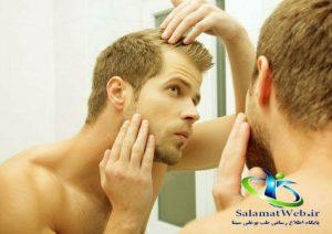 روغن کندش برای ریش