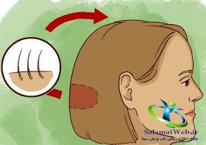 رشد سریع مو در یک روز