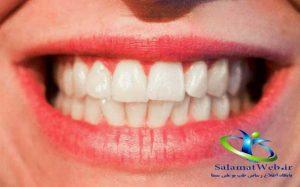 عسل سفید کننده دندان