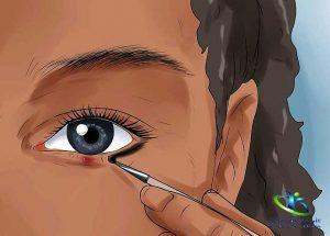 جراحی گل مژه چگونه است