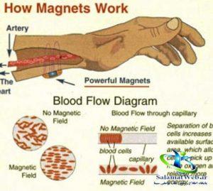 مغناطیس درمانی چیست
