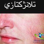 تلانژکتازی چیست؟+ درمان تلانژکتازی پوست