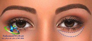 فیلم تزریق چربی زیر چشم