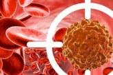 سرطان خون چیست؟+علایم خطرناک سرطان خون در کودکان