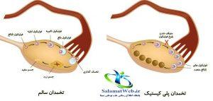 درمان تخمدان پلی کیستیک با طب سنتی