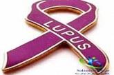 بیماری لوپوس چیست؟+راه های تشخیص و درمان لوپوس