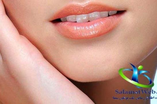 همه چیز درباره جراحی کوچک کردن لب و دهان