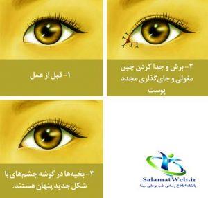 عمل زیبایی چشم بادامی