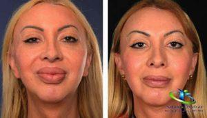 جراحی کوچک کردن لب و دهان