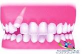 دندان نیش نهفته چیست؟+روش های درمان دندان نیش نهفته