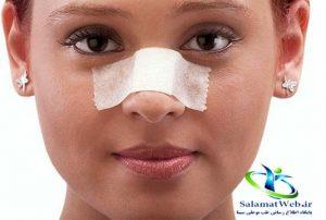 درمان چسبندگی بینی بعد از عمل