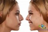 علت چسبندگی مخاط بینی+درمان چسبندگی مخاط بینی