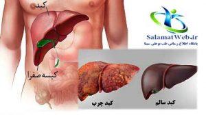 درمان فوری کبد چرب